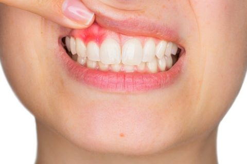 Get rid of swollen gums