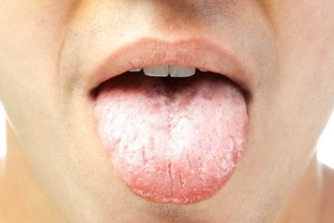 How to get rid of white tongue