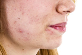 how to get rid of mould in your body