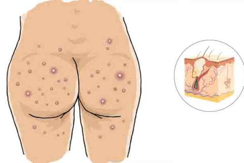 Home remedies for butt acne