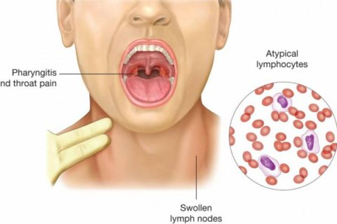 Home Remedies to Treat Mononucleosis