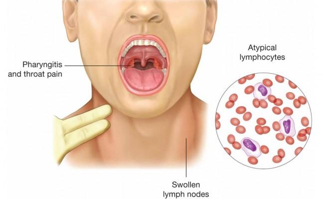 How To Treat Epstein Barr Virus Naturally