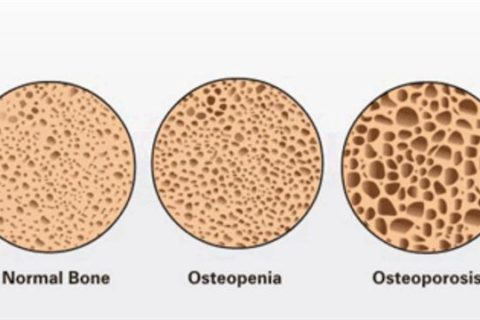 Home remedies for osteopenia