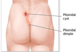 How to Get Rid of Pilonidal Cysts